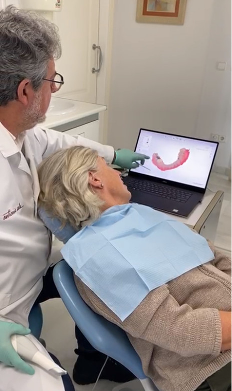 Scanner intrabucal de Clínica Dental Moraira