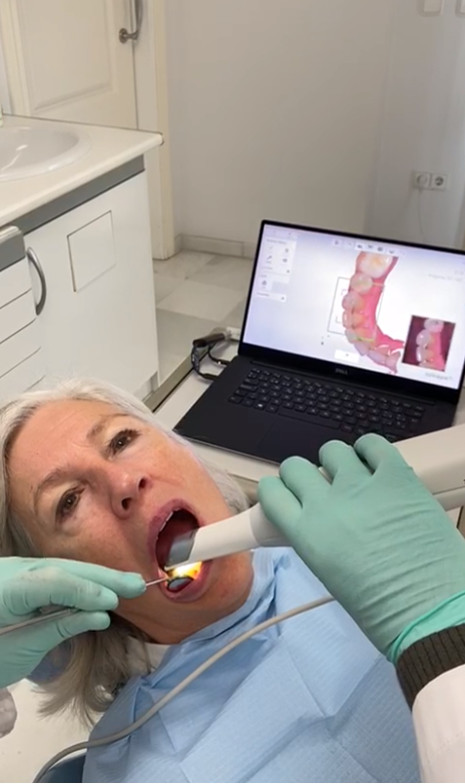 Escáner dental intrabucal de Clínica Dental Moraira
